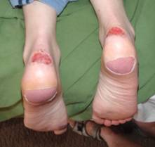 An example of significant blisters